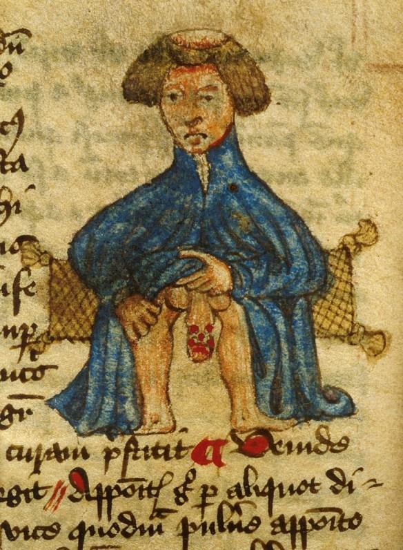 John Arderne, Liber Medicinarum, England 15th century. British Library, Sloane 56, fol. 85v