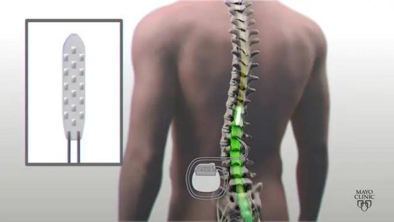 Pesquisadores implantaram eletrodos em pacientes que permitem estimular a medula espinhal