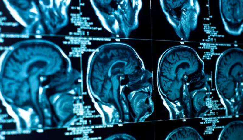 """Wood postou em sua conta no Facebook uma tomografia computadorizada de sua cabeça que foi feita no hospital. Isso foi em julho de 2018, no canto inferior direito você pode ver o tumor no lugar do círculo branco, agora ele desapareceu"""", disse o padre californiano. Se você não acredita em Deus e acha que ele não faz milagres, explique isso. O tumor desapareceu e os médicos não conseguem explicar, concordam que é um milagre. É um milagre e é assim que Deus planejou isso."""""""