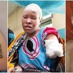 Crianças albinas vítimas de bruxaria na Tanzânia
