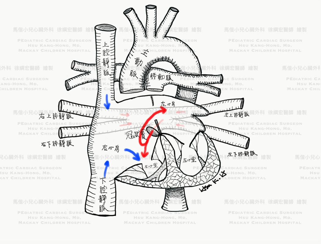 全肺靜脈迴流異常