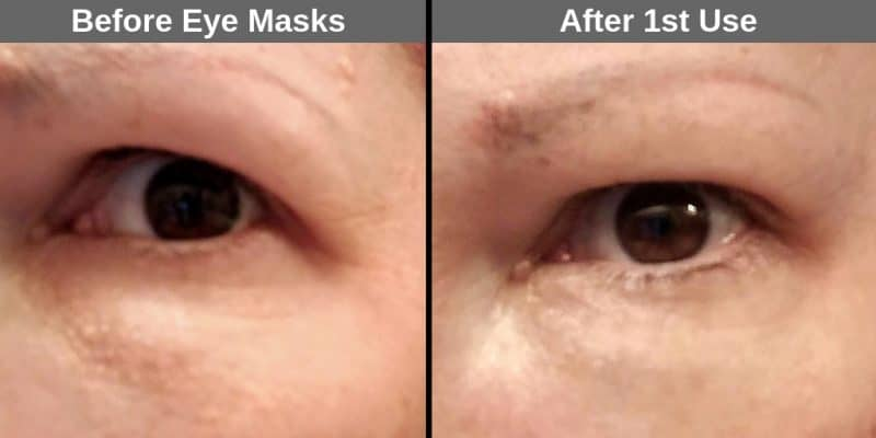 Before and After using the eye masks for the first time