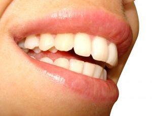Prendre soin de ses dents, un contrat à vie! 1