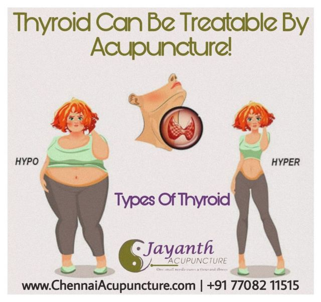 Acupuncture-treatment-for-thyroid-in-chennai