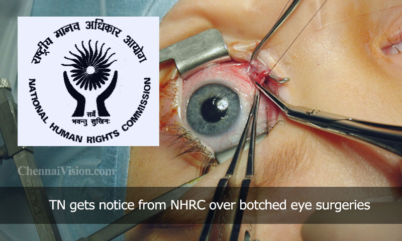 TN gets notice from NHRC over botched eye surgeries