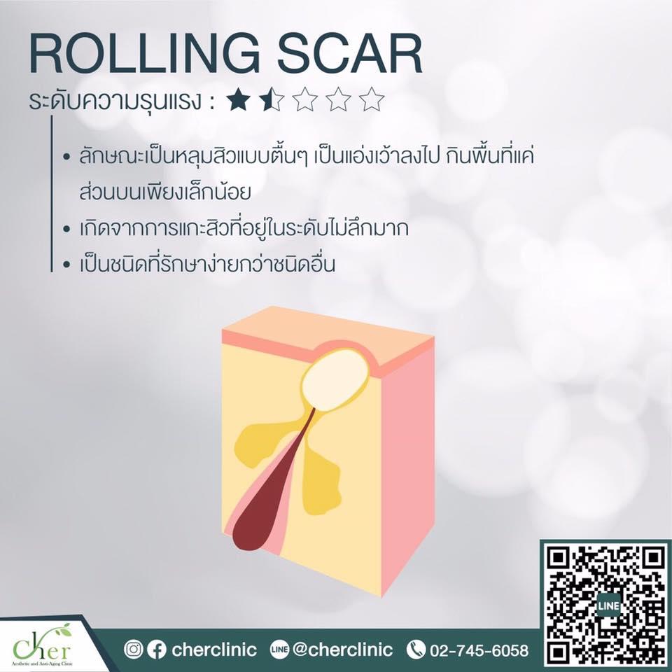 rolling scar