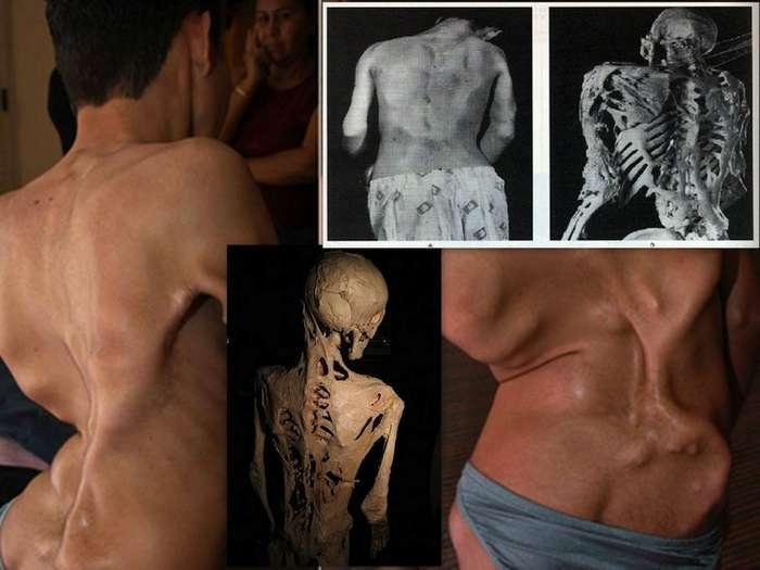 10 самых редких и необычных болезней-11 фото-