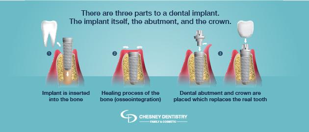 Dental Implants Graphic