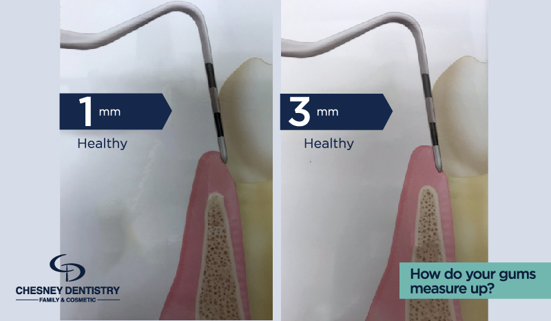 Healthy Dental Probing