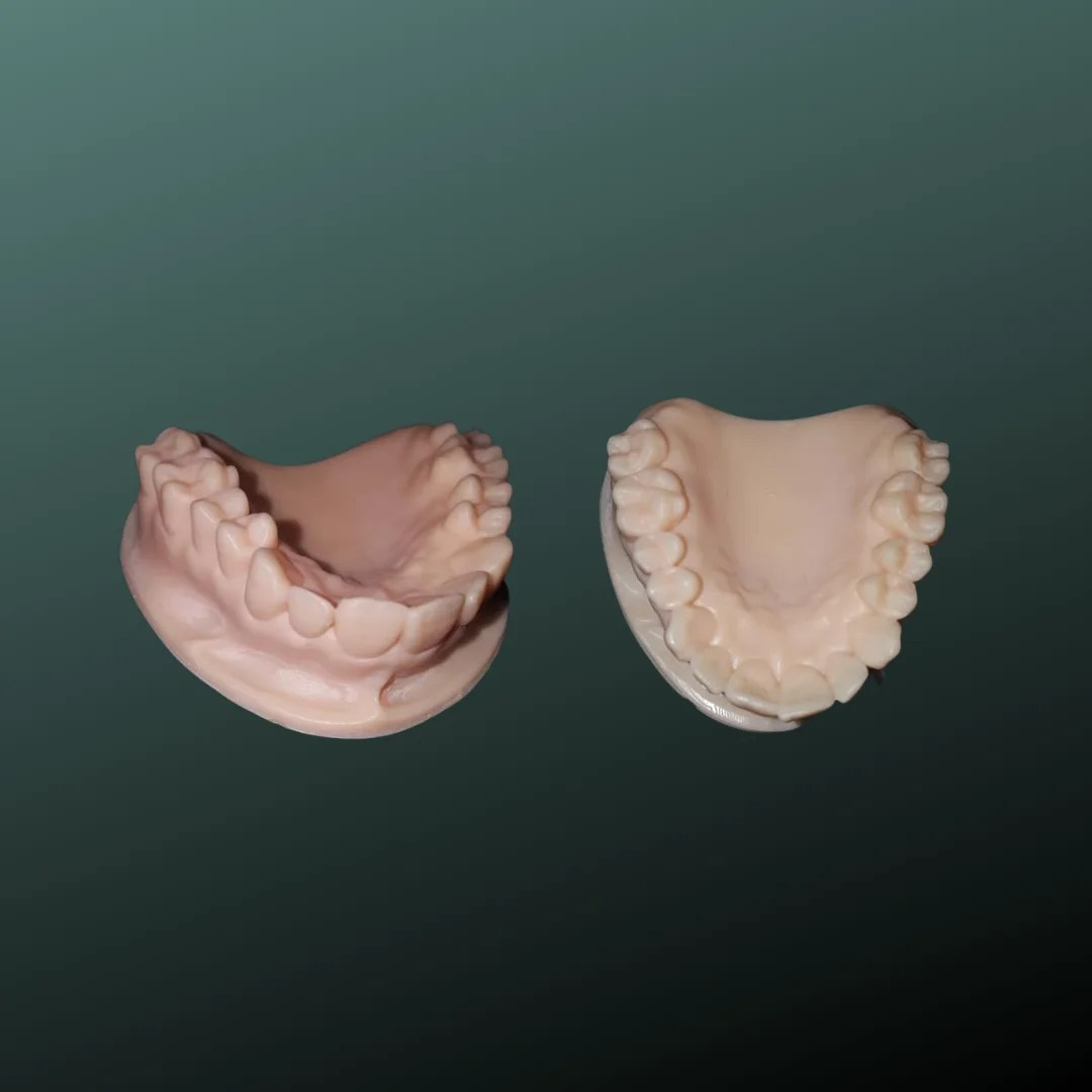 3D Printed Dental Molds