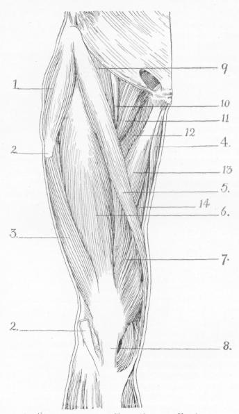 [Treatment for tibialis posterior tendonitis exersises