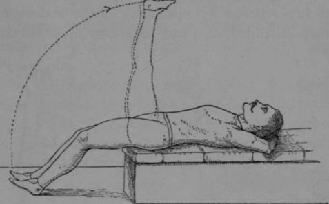Habitual Constipation