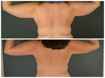 Arms-Back