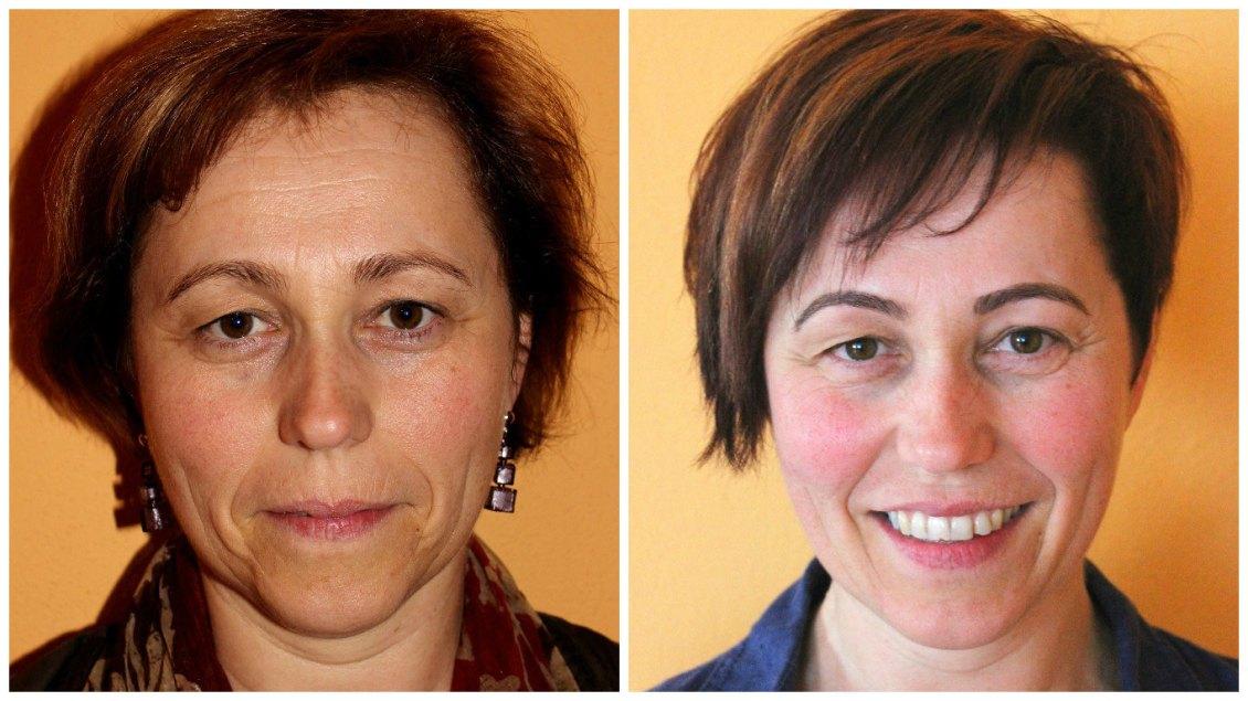 Vorher-nachher von vorne Chi-statt-botox