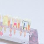 歯根のう胞で顎の骨が溶けて抜歯、インプラントを25歳で入れた話。