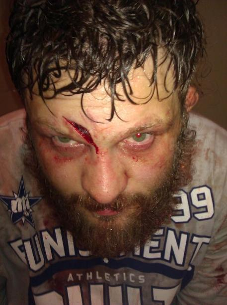 Roy Nelson's Head Cut