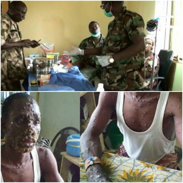 Nigerian Army with injection