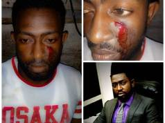 Bayelsa Governorship Aspiring Candidate attacked in Yenagoa by gunmen