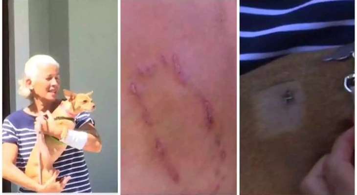 The family looks for justice after a neighbor's chihuahua attacks a woman
