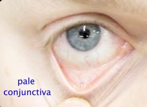 Conjunctival-pallor1_Fotor_Fotor - Child Health