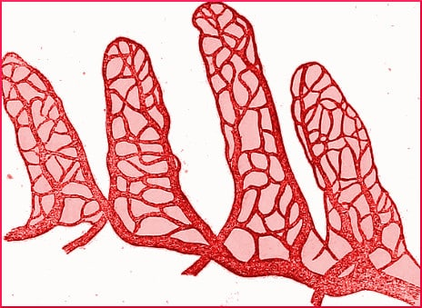 leaky-gut-illustration