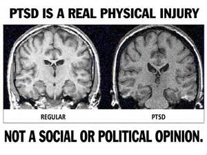 Why Is Physical Illness More Common In PTSD Sufferers? 15