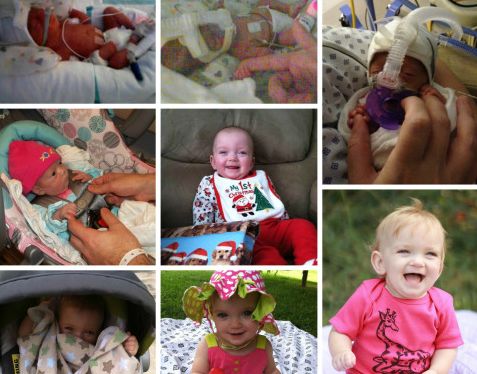 The Things People Say to Parents of Preemies: Cheering on Charlie