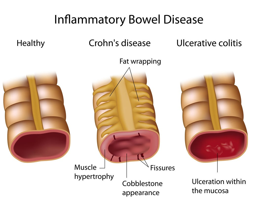hight resolution of diagram of ibd