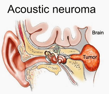 01 20 20 Neuroma Six Italian Courts Have Ruled that Cell Phones Cause Brain Tumors