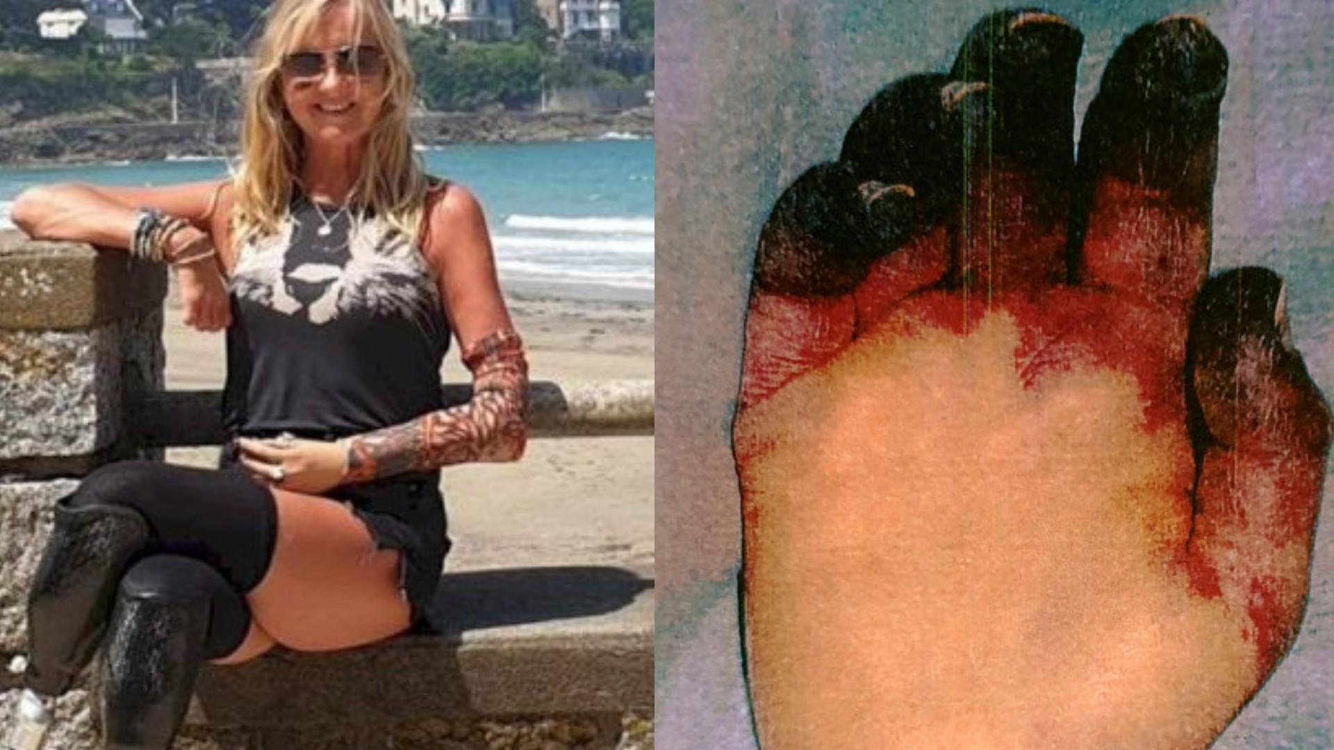 Mujer fue por una TOS al hospital y terminó SIN PIERNAS, un brazo y 4 DEDOS