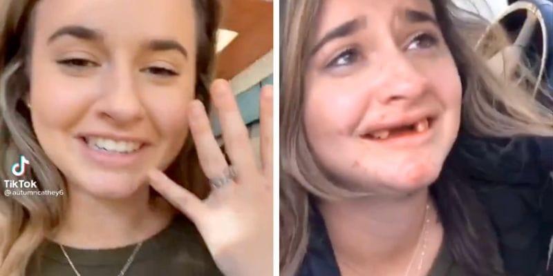 Tiktoker se ROMPIÓ los dientes tras ABSURDO reto viral con alcohol: tuvo que ser OPERADA