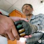 bionic-hand-8