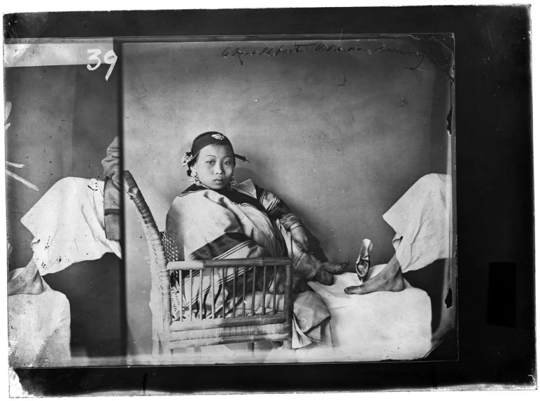Woman with bound feet, photograph by John Thomson