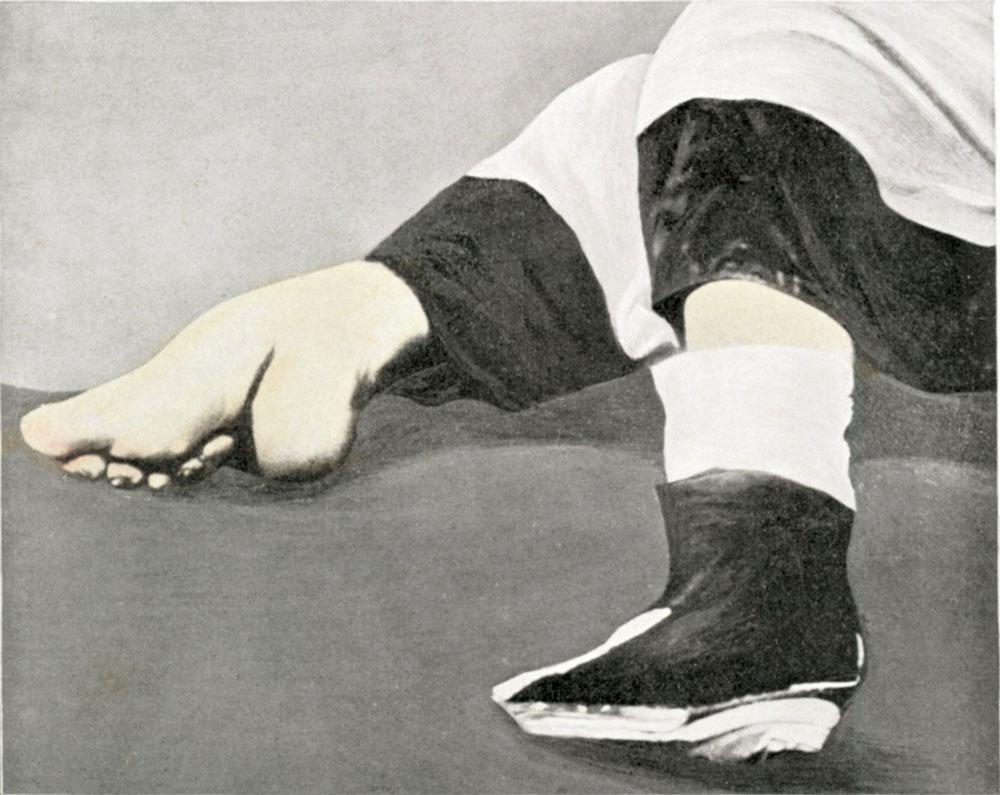 Foot-binding-in-China-1911
