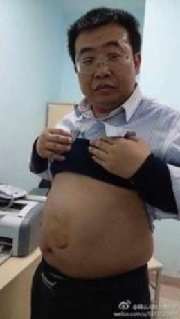 Jiang Tianyong exposes his stomach, scarred by a beating while in detention in Heilongjiang, in March 2014. (Jiang Tianyong/weibo.com)
