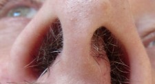 Hairy Noses 55