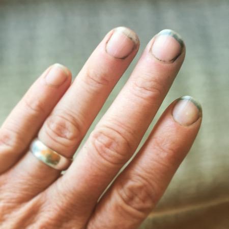 dirty fingernails