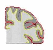The Cortex in Fear Memory
