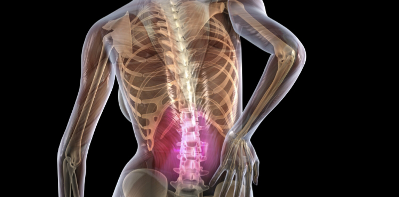 The Global Burden of Low Back Pain