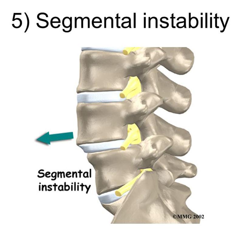 Kinematic Analysis of Dynamic Lumbar Motion in Patients with Lumbar Segmental Instability Using Digital Videofluoroscopy