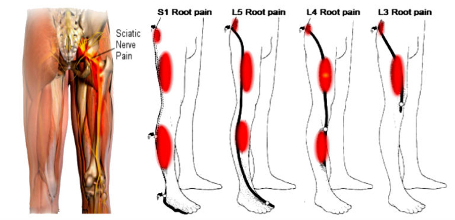 Leg Pain Location and Neurological Signs Relate to Outcomes in Primary Care Patients with Low Back Pain
