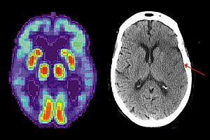 dementia-stroke-200-300