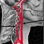 vertebral artery