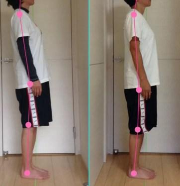 腰痛と足のしびれ