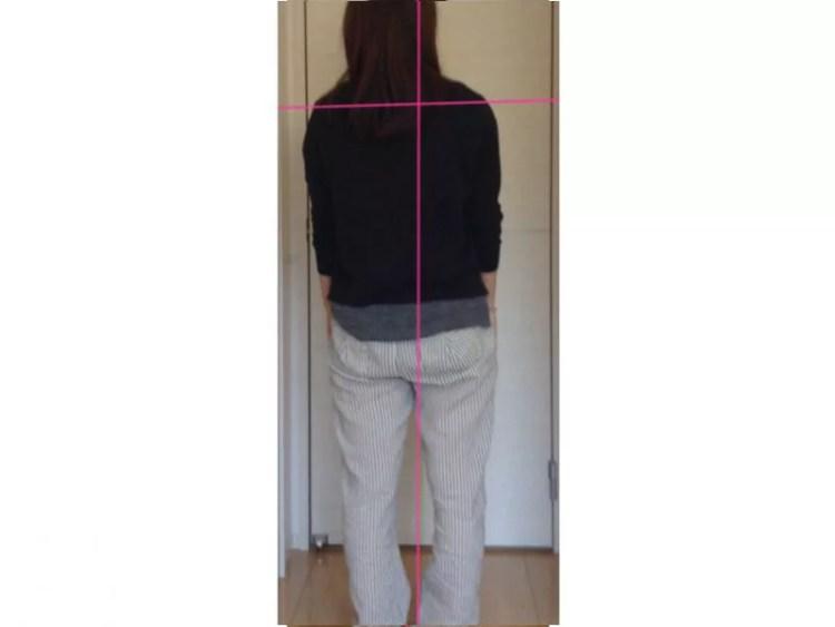 体が左に傾いていることで肩こりと腰痛が起きている