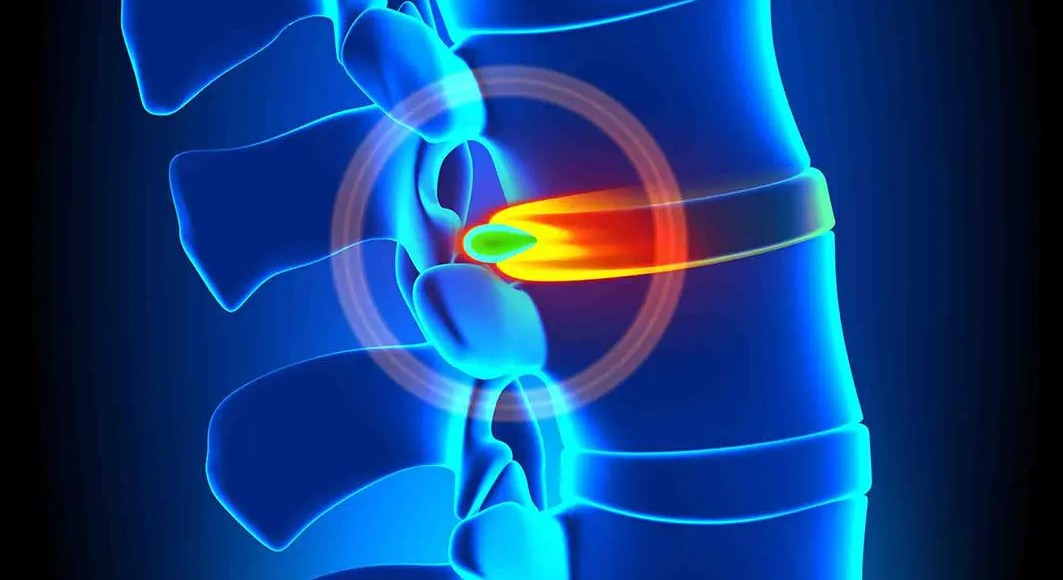 Disc and Ligament Injuries: Documenting the Cause - El Paso Chiropractor