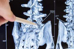 chiropractor lumbosacral-spine x ray el paso tx