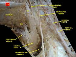 piriformis gross anatomy el paso tx