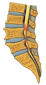 sciatica cause