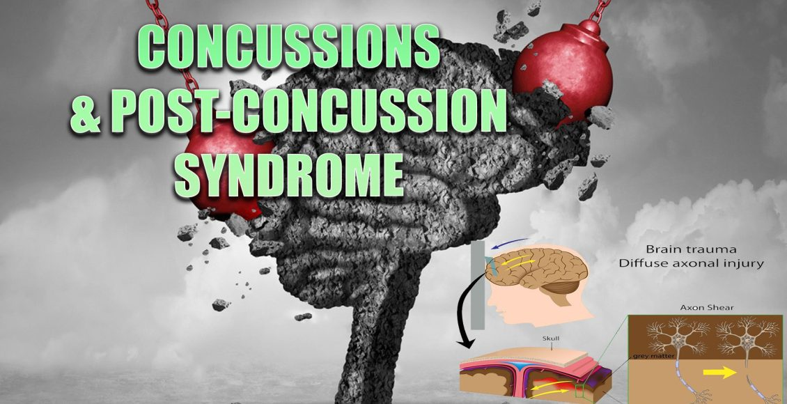 concussions el paso tx.